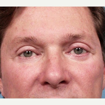35-44 year old man treated with Eyelid Surgery after 2173377
