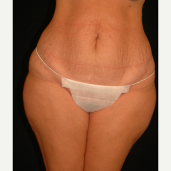35-44 year old woman treated with Tummy Tuck before 3057658