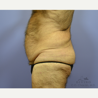 65-74 year old man treated with Male Tummy Tuck before 3421545