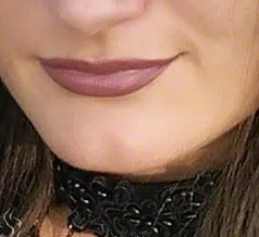 25-34 year old woman treated with Lip Augmentation before 3558545