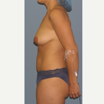 18-24 year old woman treated with Breast Lift with Implants before 3502350