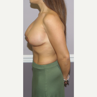 18-24 year old woman treated with Breast Lift with Implants after 3502350
