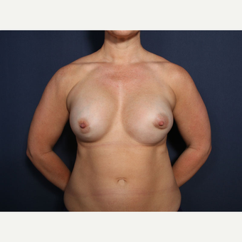 35-44 year old woman treated with Breast Implant Revision (view 1 of 2) before 3225695