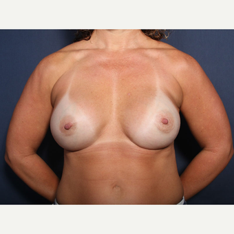 35-44 year old woman treated with Breast Implant Revision (view 1 of 2) after 3225695