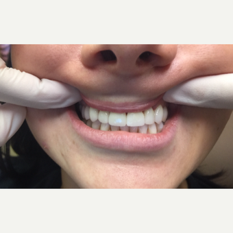 25-34 year old woman treated with Porcelain Veneers for whiter teeth after 3271520