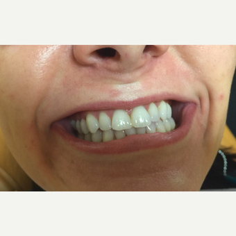 25-34 year old woman treated with Porcelain Veneers for whiter teeth before 3271520