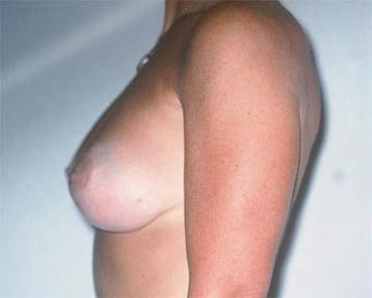 Breast Asymmetry Correction after 281314