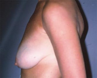 Breast Asymmetry Correction before 281314