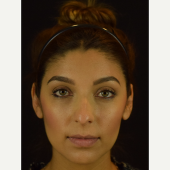 Latina Rhinoplasty To Bring Out Beautiful Facial Features - Eyes and Smile before 3455762