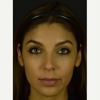 Latina Rhinoplasty To Bring Out Beautiful Facial Features - Eyes and Smile after 3455762