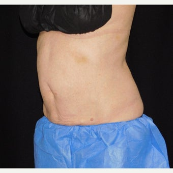 55-64 year old woman treated with CoolSculpting after 2154969