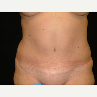 35-44 year old woman treated with Full Tummy Tuck after 3141919