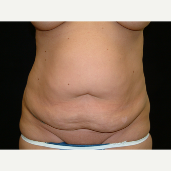 35-44 year old woman treated with Full Tummy Tuck before 3141919