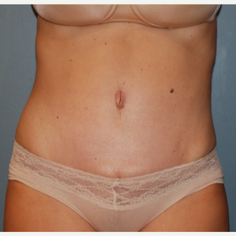 35-44 year old woman treated with Tummy Tuck after 3609809