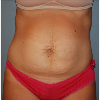 35-44 year old woman treated with Tummy Tuck before 3609809