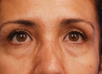 Lower blepharoplasty with fat repositioning before 3170793
