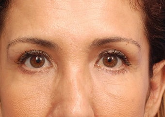 Lower blepharoplasty with fat repositioning after 3170793