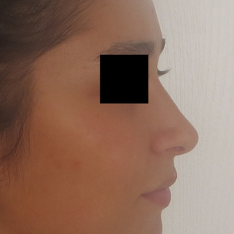 18-24 year old woman treated with Rhinoplasty after 3511014