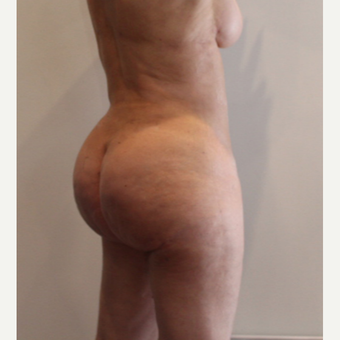 35-44 year old woman treated with Brazilian Butt Lift after 3338940