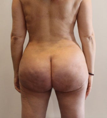 35-44 year old woman treated with Brazilian Butt Lift 3338940