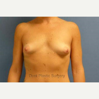 25 year old woman with tuberous breasts treated with implant reconstruction before 3095680