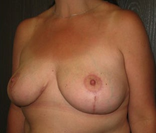 48 year old female wanted to lift and reduce the size of her breasts after 1495038