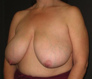 48 year old female wanted to lift and reduce the size of her breasts before 1495038