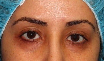 18-24 year old woman treated with PicoSure before 3371484
