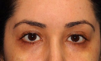 18-24 year old woman treated with PicoSure after 3371484