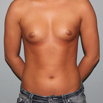 18-24 year old woman treated with Breast Augmentation before 3141556