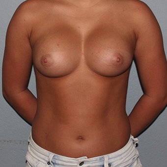 18-24 year old woman treated with Breast Augmentation after 3141556