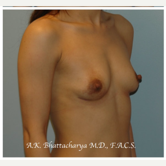 25-34 year old woman treated with Breast Augmentation before 3610486