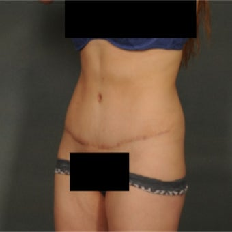25-34 year old woman treated with Tummy Tuck 1868659