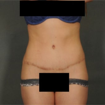 25-34 year old woman treated with Tummy Tuck after 1868659