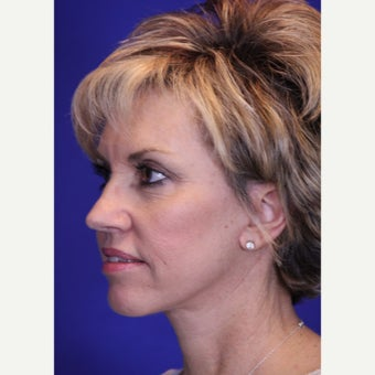 Lower Face Lift, Fat Transfer, and Fractional CO2 Laser Skin Resurfacing after 2050262