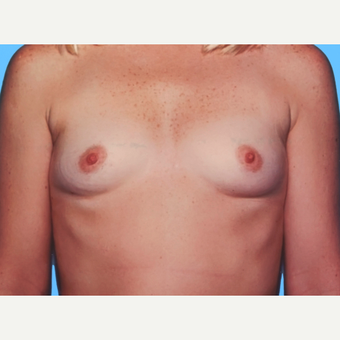 Breast Augmentation before 3732537