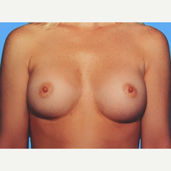 Breast Augmentation after 3732537