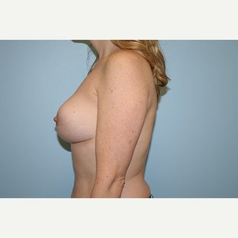 Breast Reduction 1724642