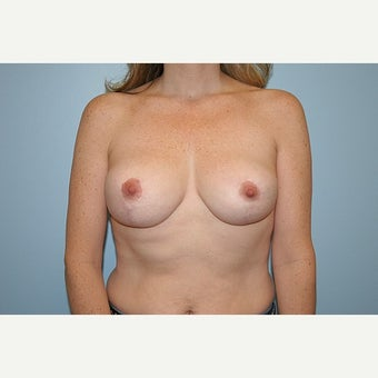 Breast Reduction after 1724642