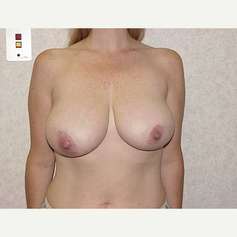 Breast Reduction before 1724642