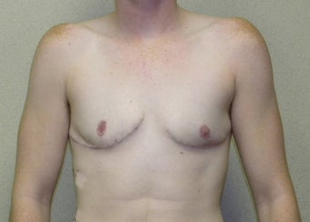 Transgender Female to Male top surgery after 1191125