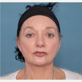 55-64 year old woman treated with Face and Neck Lift after 3532717