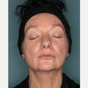 55-64 year old woman treated with Face and Neck Lift before 3532717