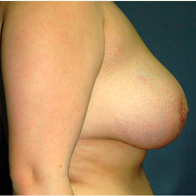18 year old woman treated with Breast Lift after 3665874