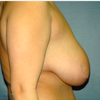 18 year old woman treated with Breast Lift before 3665874
