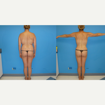 45-54 year old woman treated with Liposuction after 3088764
