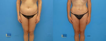 45-54 year old woman treated with Liposuction before 3088764