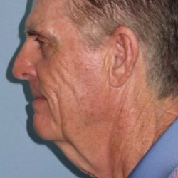 65-74 year old man treated with Neck Lift before 3722216