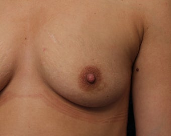 29 Year Old Woman with Inverted Nipples