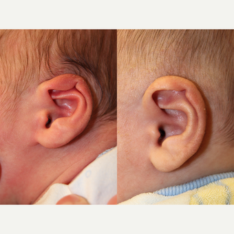 1 month old child treated with EarWell Appliance. before 3542197
